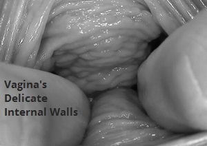irritated vagina walls during sex
